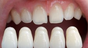 Learning the Procedure of Dental Veneers Treatment